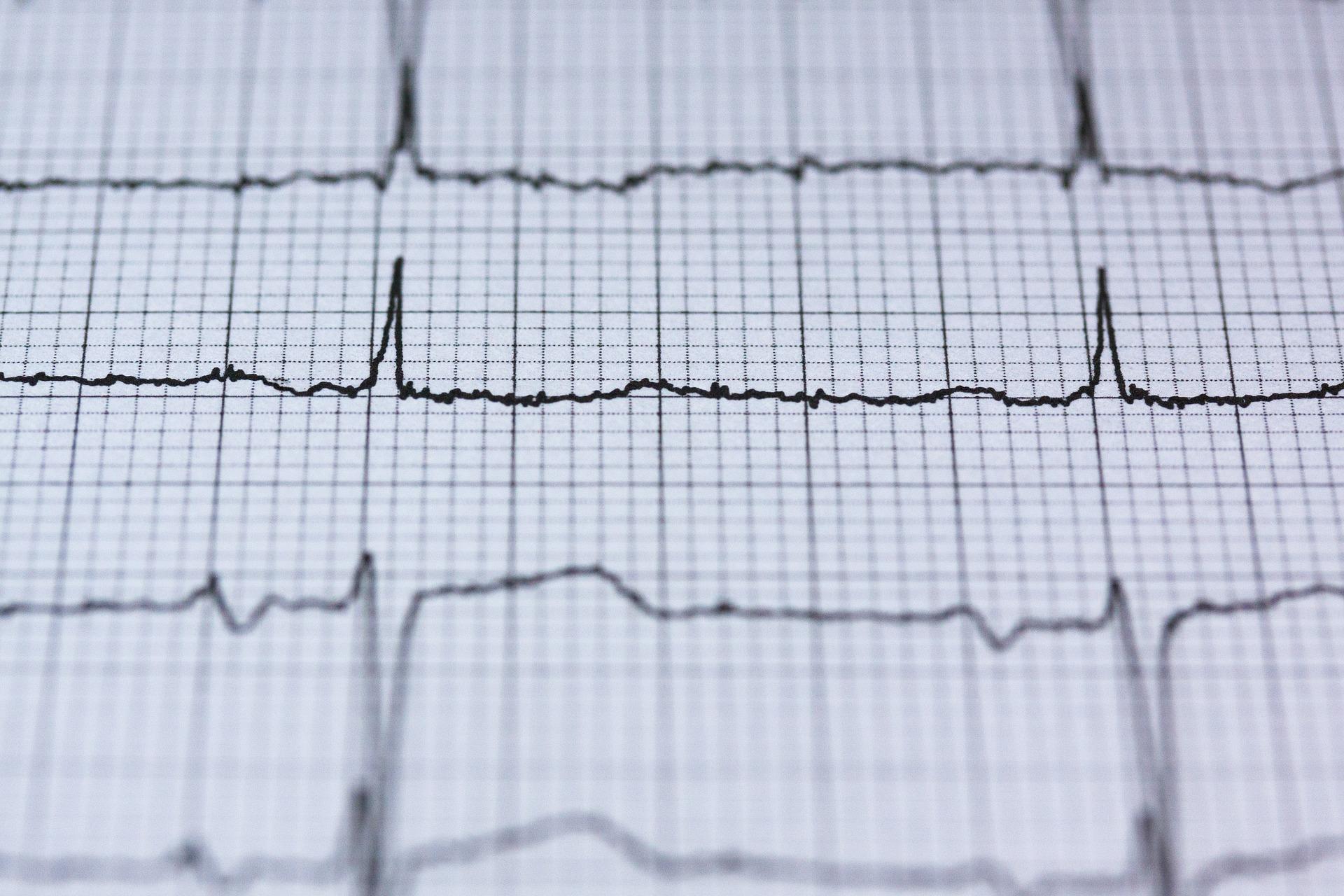 electrocardiogramă
